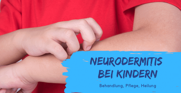 Neurodermitis behandeln Haut pflegen