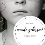Mein Kind wurde gebissen: Was soll ich jetzt tun?