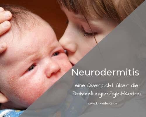 Neurodermitis bei Baby und Kind